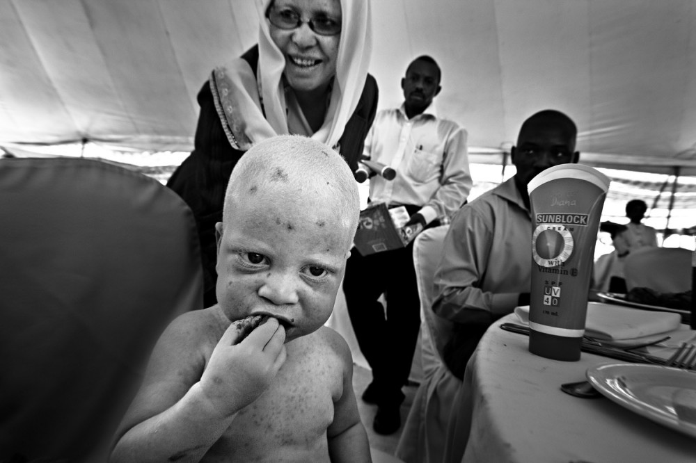 Art and Documentary Photography - Loading FVO-Albino-Killing-Tanzania-15.jpg