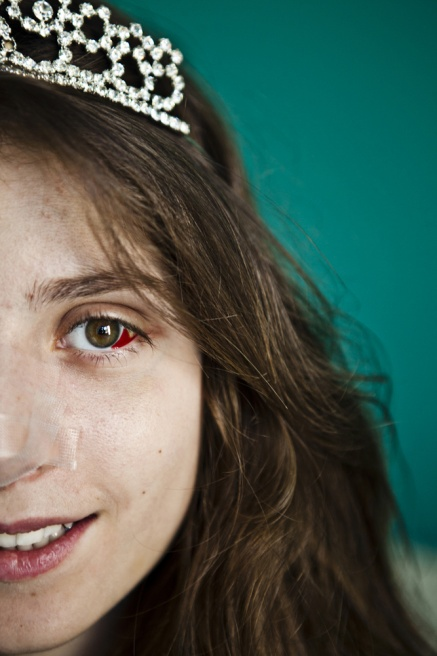 """02/12/2013 ADMA, LEBANON Tamara Hobeika, 18, a Debutante Ball participant in her bedroom, a week and a half after she had a nose job operation. """"I hated my nose, I was sad because of my nose, and was obssessed with it. It's not superficial to repair the nose, like all the stars here. I love it now because it looks natural, it's me."""""""