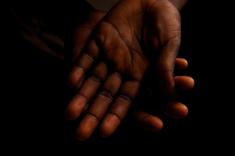 The hands of a girl who was raped at 14 years old, Duport Road Clinic, Monrovia, Liberia.