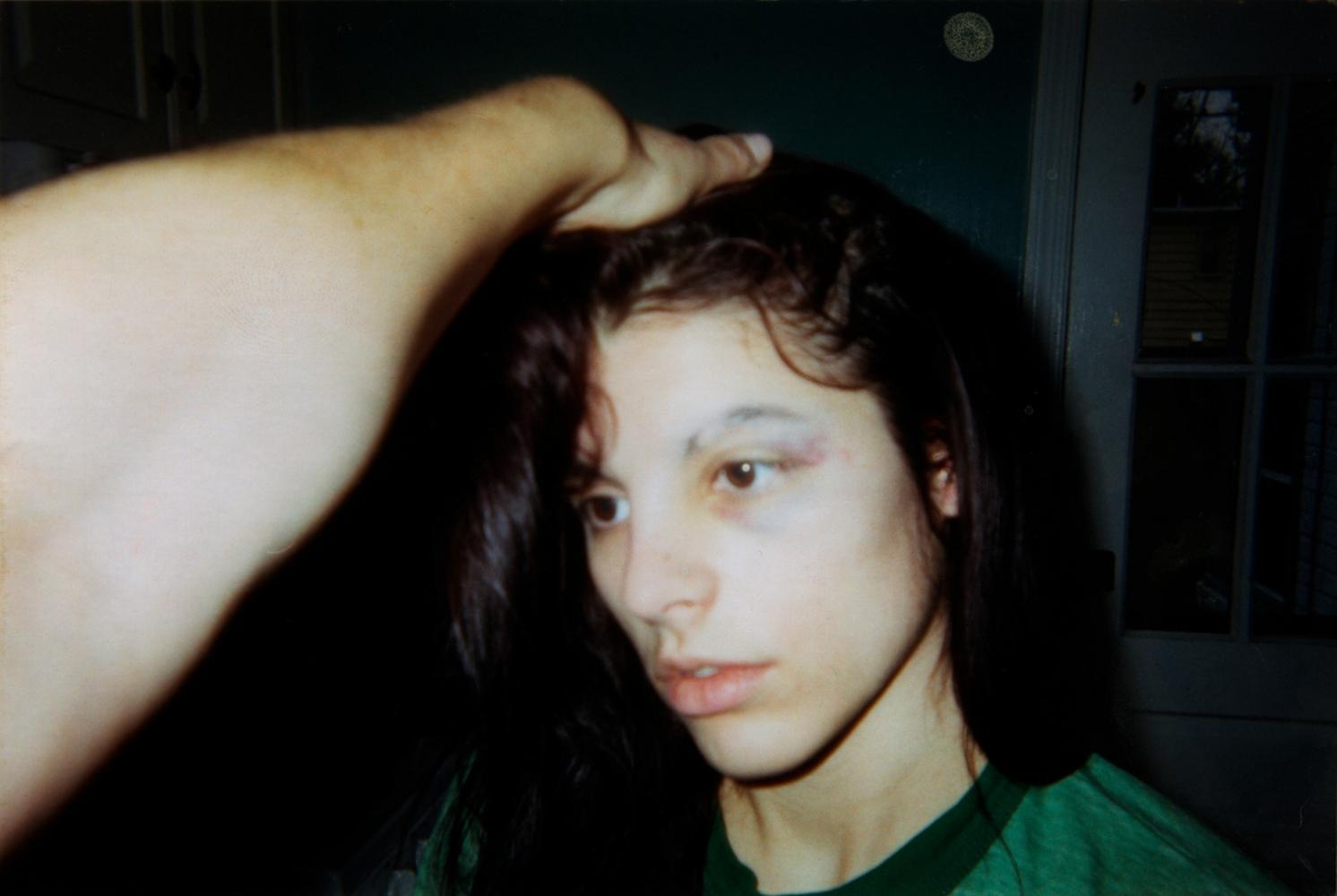 Hannah's First Black Eye  / Hannah, 2006