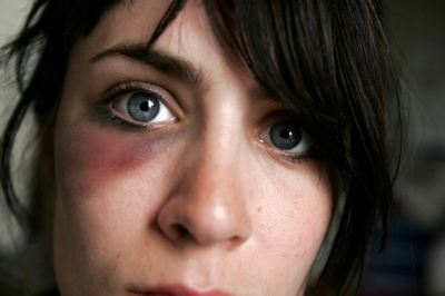 My First Black Eye  / Self Portrait, 2006