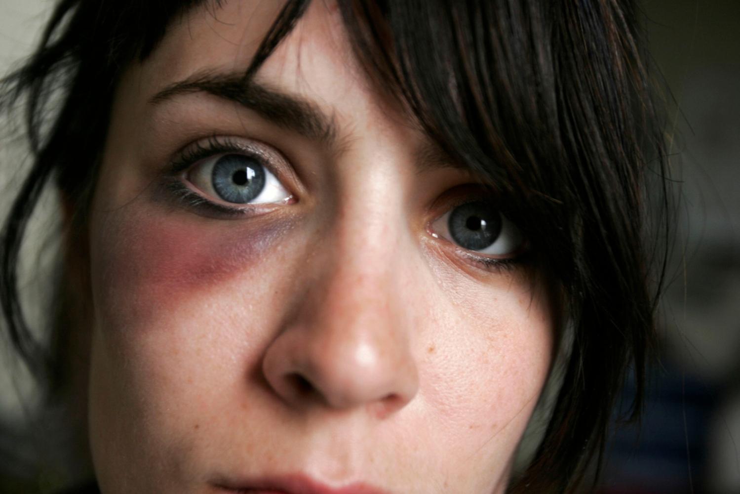 My First Black Eye  / Self Portrait, 2006