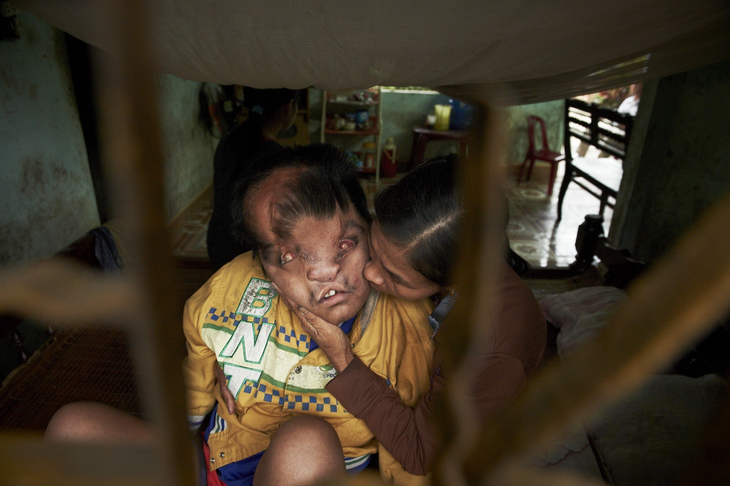 Son of a War veteran, Doduc Duyen (Born in 1997) has eyes that cannot see, ears that cannot hear, and a body he cannot control. He was born with a face‐sized tumor on his head and had it surgically removed when he was 18 months old with the financial aid of the Taiwanese NGO. The tumor is growing back again, but this time is accompanied with severe paralysis and epilepsy symptoms. His only hope in life is his mother's unconditional motherly love. The War brought destruction on generations after generations for mankind. The mother's love for her child is the only defense for this mother and son. (Dec. 8, 2012)