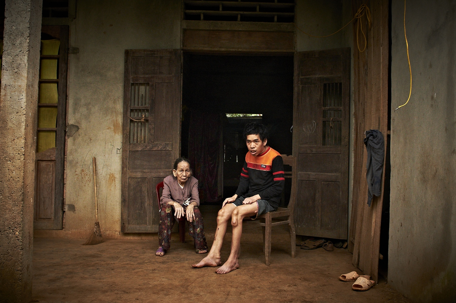 Deaf and mentally challenged, Hoang Van Trung (Male, born in 1978), lost his father to Agent Orange, a civilian who was directly hit by the chemicals during the War. Hoang Van Trung is suffering from severe skin cancer on his lower part of body and is unable to walk. The only person he can depend on is his frail and old grandmother. (Dec. 8, 2012)