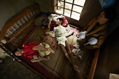 Despite their father being a civilian during the War, when the chemicals were sprayed, he was still directly targeted and hit many times. Their father no longer lives, while his two daughters, Nguyen Thi Tai (Female, born in 1988) and Nguyen ThI Thuyet, (Female, born in 1993), live on with cerebral palsy and with no control over their bodies. These girls who appear to be teenagers are actually young ladies in their 20's whose mother still tends to their urination and defecated diapers. (Dec. 8, 2012)