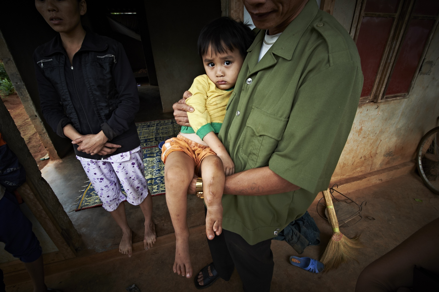 Le DInh Nam (Male, born in 2009) has a congenital deformation, with four toes on the right foot and deformed left foot toes. He has undergone surgery before, but his tibia continue to deform while fibula seem to have disappeared. This boy's father was not directly involved in the War, but was hit on his shoulder with a piece of land mine that had exploded while cleaning out land mines from an area heavily contaminated by the chemical weapon. This boy is one of the many victims of the environmental pollution caused by the Agent Orange. (Dec. 8, 2012)