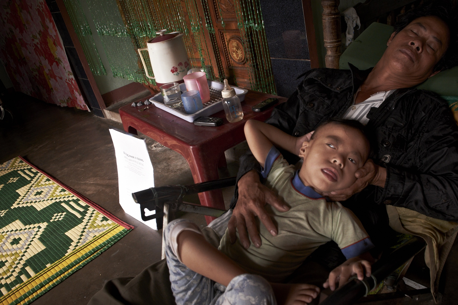 Tran Thi Thuy Linh's (Female, age 6) father was never in the War but had worked in an area contaminated by the chemical for well over ten years. He no longer works, due to undiagnosed nervous system illnesses that prevented him from working. The daughter suffers from brain lesions. Of recent, they have been determined as victims of the Agent Orange by VAVA (Vietnam Union of Friendship Organization). The Agent Orange gets its alias, Slow Bullet, for its gradual surfacing of effects, unlike the explosives with immediate results. (Dec. 4, 2012)