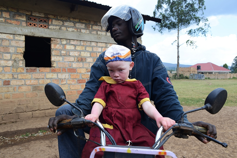 Kirabo, 5, (pictured here) and her two siblings, also born with albinism, were found hiding in the hills around Kisoro in Western Uganda after being abducted by child traffickers and then abandoned. Michael Sabiiti who has become a local advocate for children with albinism was tipped off by locals, rescued the children. With the support of Humanity Healing, Sibiiti was able to place them in a boarding school. In Uganda, children with albinism - seen less as human being and more as a valuable commodity - suffer barbaric practices at the hands of traffickers and witch doctors such as bloodletting, dismemberment, abuse, rape, discrimination and death.