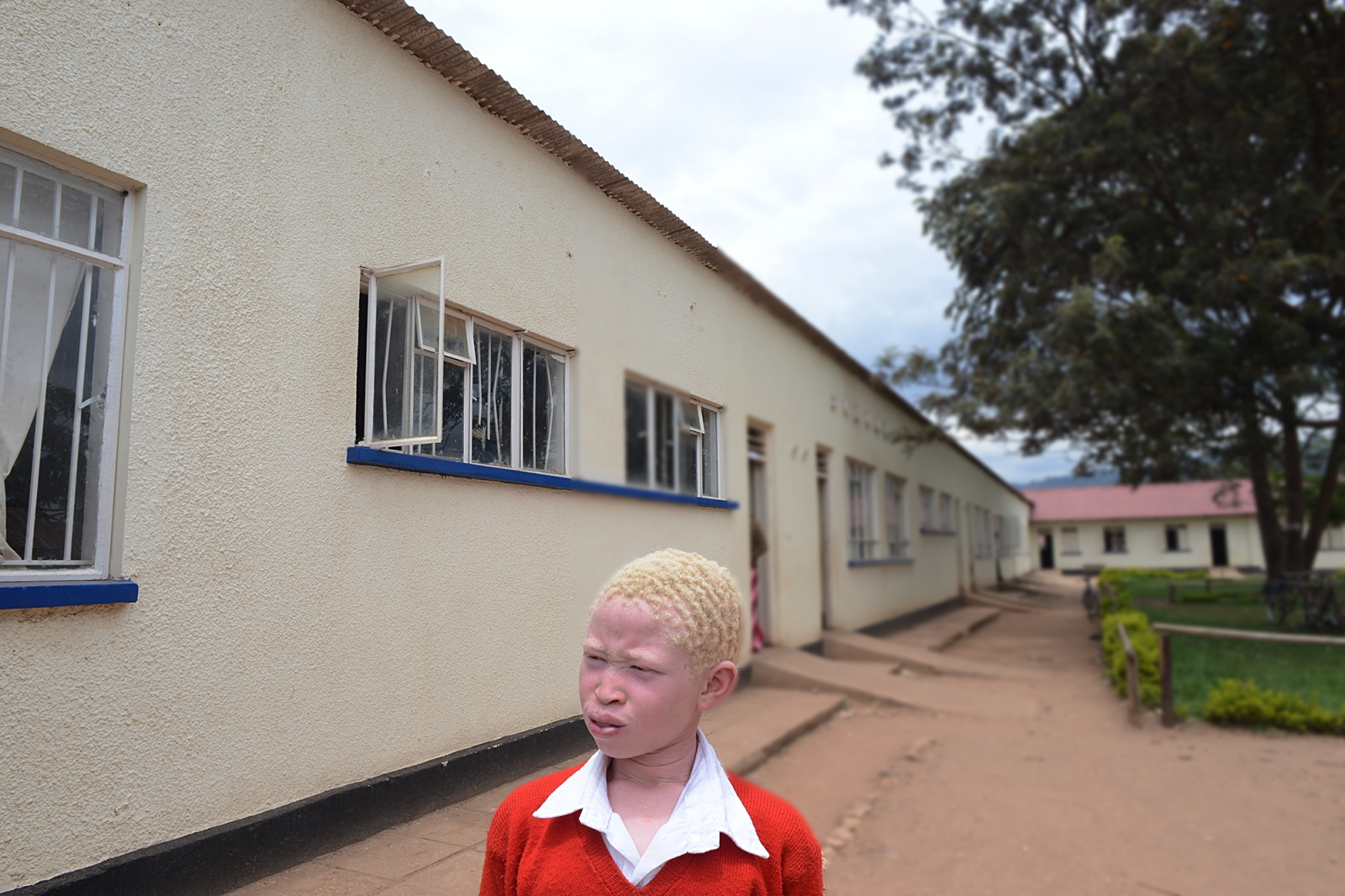 "Portrait of Natasha, 11, a.k.a. ""Golden"". Abandoned by her family, Natasha was rescued by Michael Sabiiti and placed in a boarding school. Many youth born with albinism in Uganda, which is a genetic condition, suffer from generalized stigma, and are often considered a curse on their family. Sabiiti has a local radio show, which focuses on illuminating crimes against children and breaking myths related to albinism. The radio is still a popular form of spreading messages through the remote villages and villagers often anonymously call and tip him off to albino children missing or sighted."
