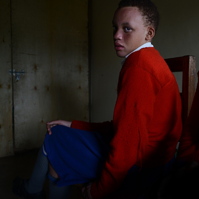 Portrait of Grace, 11. There are several types of albinism: while Oculocutaneous Albinism 1 and 2 (OCA1 and OCA2) affect the eyes, hair and skin, Ocular Albinism (OA) only affects the eyes. In Grace's case, OCA2, which has a higher prevalence among Africans, affects the p-protein, a protein involved in melanin production, resulting in some pigment production.