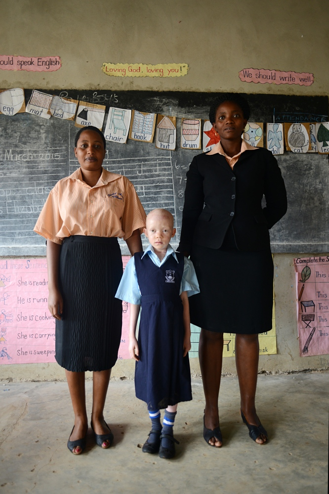 With the support of school staff she is learning how to connect with others and begin her new life. I think what struck me most about this little girl was when I tried to get her to smile, and realized she didn't know how. She has not up until now experienced childhood in any way. Albinism occurs in all racial and ethnic groups throughout the world.