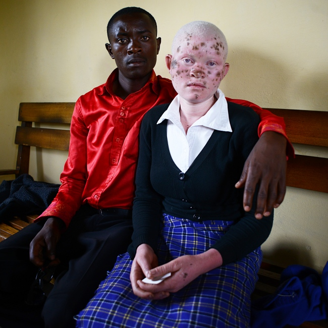 """God created us, we are not a curse,"" she says. ""We should be accepted for who we are."" - Rebecca, 18, and her brother, Sitivin, 20. She was forced to flee from her home because of threats to her safety by local witch doctors. In much of rural, western Uganda children born with albinism are treated with discrimination by their communities and targeted by witch doctors who use their bodies in horrific practices. Rebecca's biggest fear now is that she will never experience a normal life; finishing school, marrying and having a family are things she desires but worries she will not have."