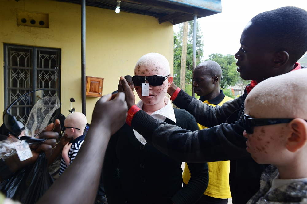 Rebecca, 18, receives a pair of glasses to protect her eyes during the day. Two years ago she dropped out of school because of issues with her vision. Ugandan youth living with albinism face many challenges to their right to education due to poor vision which can be addressed. A low level of education can lead to unemployment and affect their right to a adequate standard of living, leaving many in poverty. The sunglasses were donated by Humanity Healing.