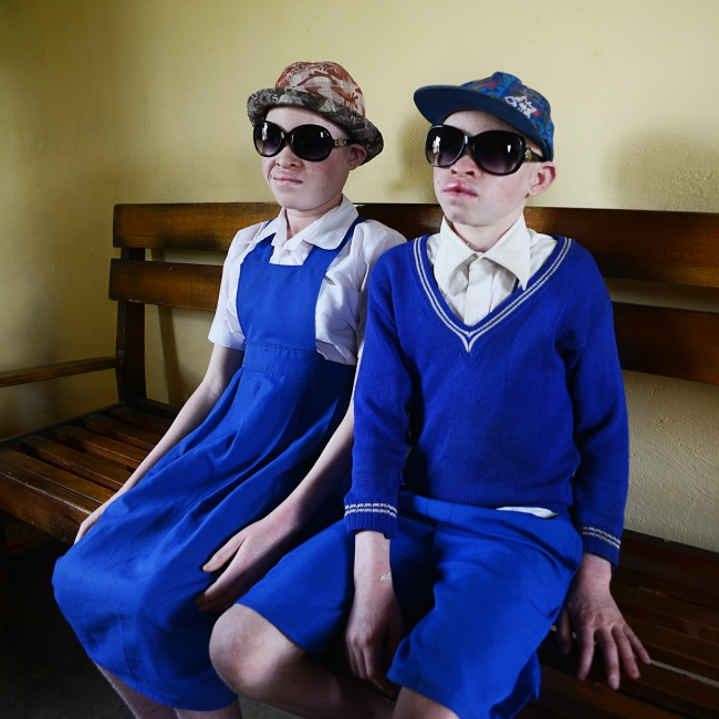 Mary, 14, and Brian, 12, after each receiving a pair of sunglasses. The brother and sister live with a caregiver who worries constantly about their safety. They are not allowed outside unless it is to go to school. Albinism, a genetic condition resulting from a lack melanin production, occurs in all racial and ethnic groups throughout the world.