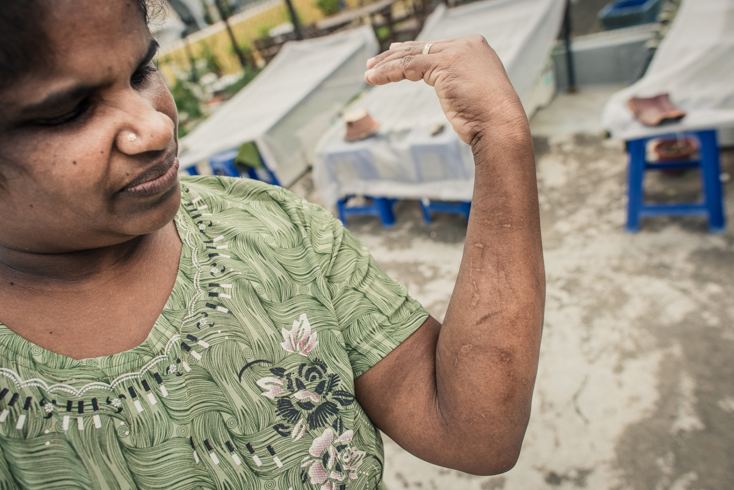 Sri Lankan Suppiah Jeyalutchummy has had three employers in SIngapore. She left her first employer as she was forced illegaly to work for their business. Her second employer made her illegally work in other family member's homes. She was also burned on her arms with metal utensils heated on the stove as a form of punishment, in some cases the complaint from her employer and stated cause for the punishment was that Ms Jeyalutchummy is left handed and was not using her right hand for her work. She ran away and is currently on her third employers, with whom she has a good relationship. She was staying in the HOME shelter while the Ministry of Manpower (MOM) investigated the fact that her second employer blacklisted her after she ran away, which became an issue when her work permit came up for renewal. The MOM found in Ms Jeyalutchummy's favour and renewed her work permit, so she is able to return to her current employment. Abuse of domestic workers ranges from physical and verbal abuse, sexual assault, punative action for perceived wrongs, violation of contracted rights and witheld pay. As Foreign domestic workers in Singapore are required by law to live with their employer, many who suffer abuses and have disputes with their employer feel they have no choice but to run away and seek shelter with their embassy or NGOs such as HOME.
