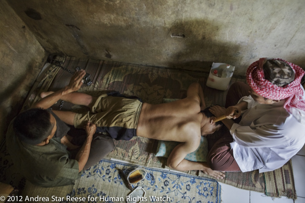 "Haji Hamden, an Islamic faith healer, chants as his assistant Abdul slaps the leg of a shelter resident at Pengobatan Alternatif Nurul Azha, a traditional healing center, in Cianjur, West Java. Abdul uses a hard impliment to massage patients, causing extensive brusing as part of the daily routine. The criteria for discharge is arbitrary "" When the (body) heat becomes cold, they are ready to leave. When I take them outside to the market or to play football and the person feels cold, it means they are cured."" says Haji Hamden."