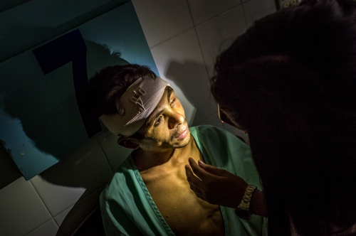 Orlando Chabaria Ribera's is examined by Ana Robles, an intern, at Occidente HospitalMarch 3, 2014in Santa Rosa de Copan, Honduras. Ribera was attacked and robbed by machete wielding bandits. He was found by passers by with horse manure packed in a large head wound from the machete. An old superstition thought to be a good remedy.Photo Ken Cedeno