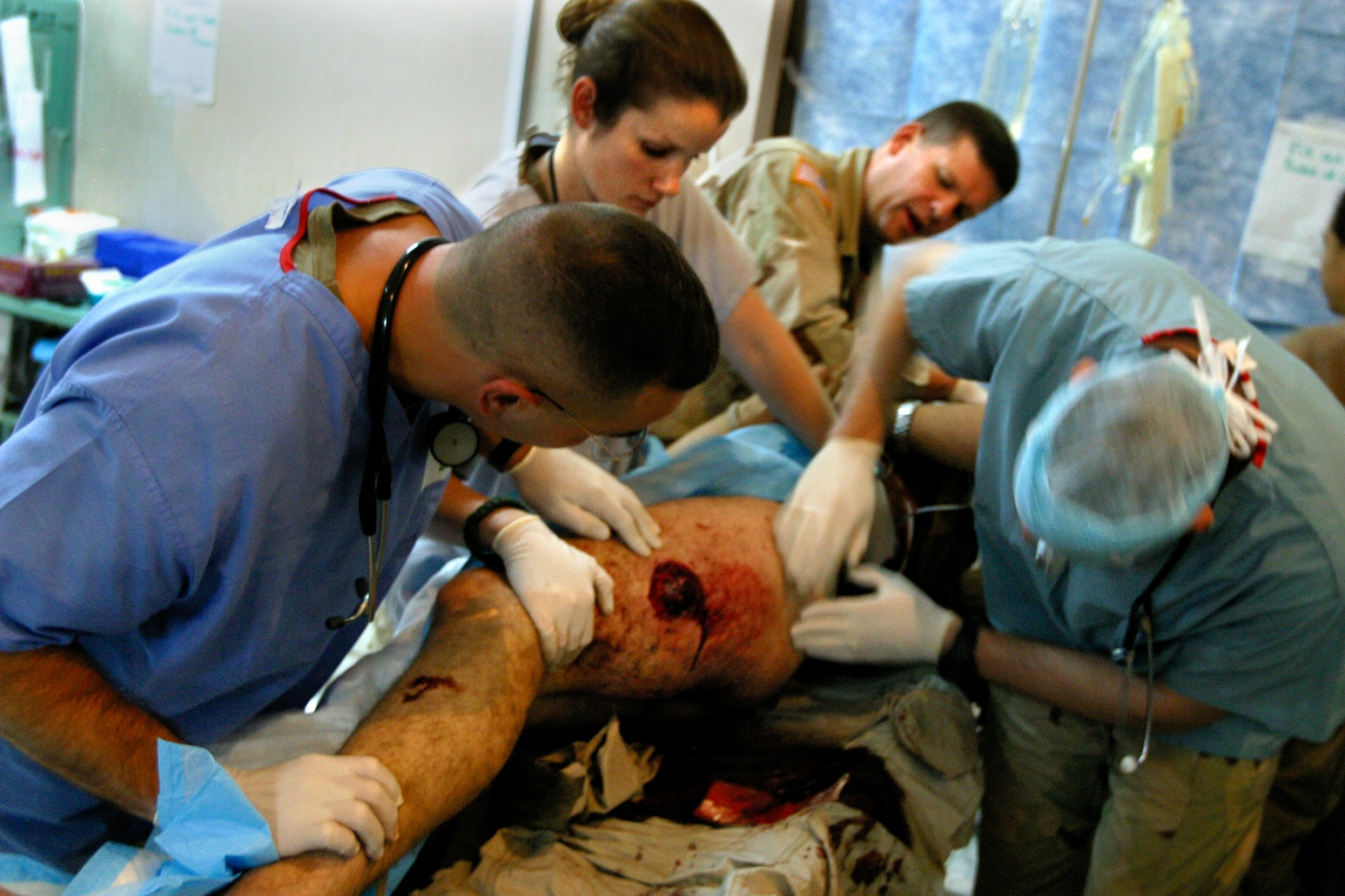 Maj. Fred Brennan, left, Lt. Hope Simmons and Maj. Jason Boardman, examine a soldier's wounds from an Improvised Explosive Device (IED). The wounds from these devices are insidious because the make-up of the bomb can be anything from nails to rocks to pieces of coil.