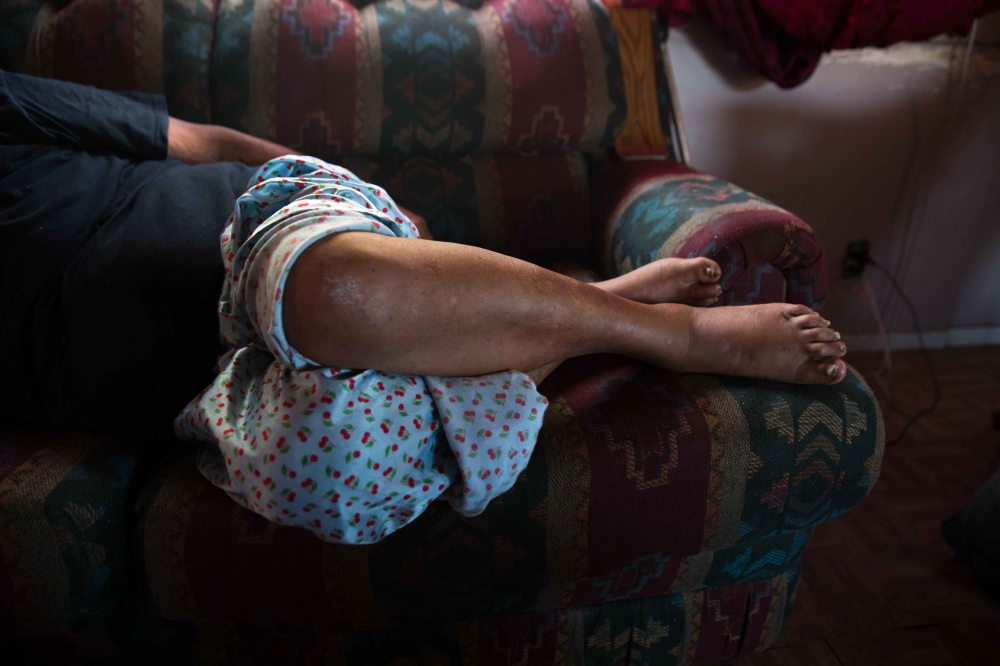 Hilda Garcia lies on the sofa in her trailer in Okieville, CA. The intense heat and no running water has put stress on her and her husband who currently suffer from several health problems. She says the heat makes her feet swell and makes it painful to walk. June 2016.