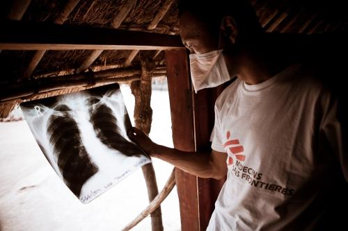 MSF TB Uganda