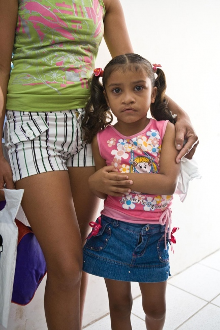 Evelyn on screening day Aquiraz, Brazil, 2008  A young mother named Luzirene sat in the waiting room with her 5-year old daughter Evelyn, whose scars were noticeable from a previous cleft lip surgery. When Evelyn was born, Luzirene had been scared of her daughter's facial deformity. At the time, she did not know that help was coming and that the fairly straightforward procedures would allow Evelyn to lead a normal life. After having her lip repaired at age 2, Evelyn was put on a waiting list for another 2 years to get an operation for her cleft palate. When Dr. Abraham's team arrived in Brazil, Luzirene's prayers were answered. Evelyn's cleft palate surgery was a success and back at home, the toys that she received from the American team were put on display like a shrine.   For Healing the Children Northeast