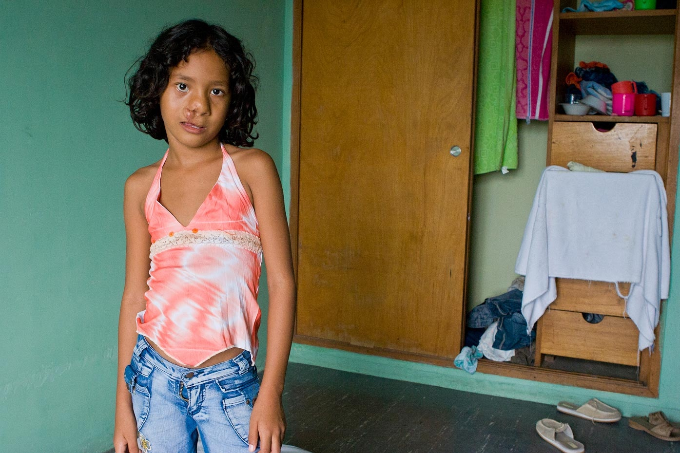 Yailene before surgery Santa Marta, Colombia, 2007 For Healing the Children Northeast