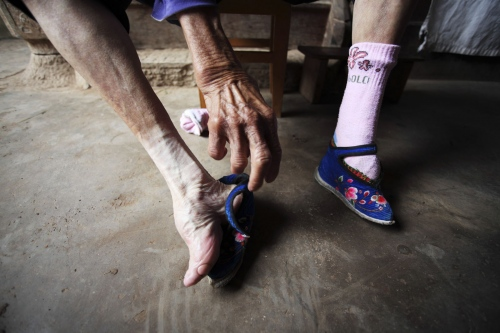 An old lady takes off her shoes exposing her tiny bound 'lotus' foot. In a remote part of the province several villages still have the last remaining women who still have bound feet. Now very old, they are the last reminder of this ancient Chinese traditional. Yunnan Province, China.