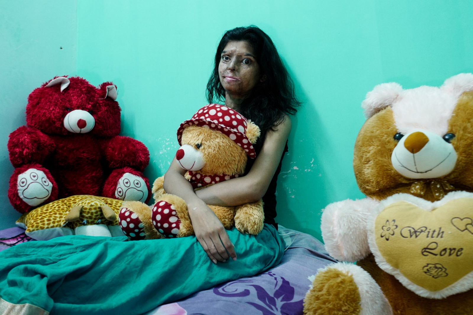 Agra, India 03 november 2015. Ritu, 20 years old, posing for a portrait holding the teddy bear. This is a present from other members of the Stop Acid Attack campaign, who also survived a similar aggression. The gift was given to her the day when her attacker was sentenced to life imprisonment. Ritu was victim of a plot orchestrated by 18 people. She was attacked in the street by two boys riding a motorbike when she was 17. They were paid by her cousin, because of a dispute between two families for the ownership of some land. She used to play volleyball for the State team but now that she's blind from left side, she cannot play anymore.