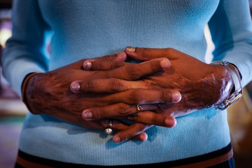 Agra, Uttar Pradesh, 29 October 2015. A detail of the hands of Laxmi, the first survivor of the stop acid attack association.