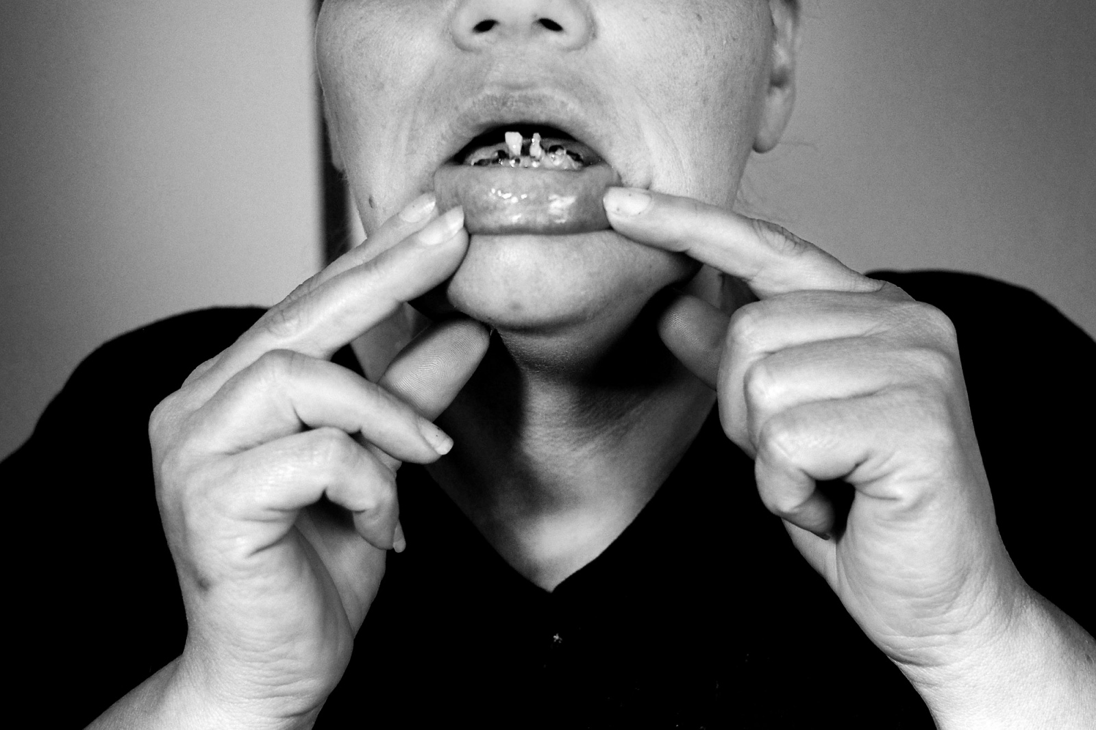 Fresno, California 2013 Dawn, shows one of the elements that characterizes a metanfetamin addict, the so called meth mouth. This substance abuse dries the salivatory glands making teeth crack and fall out in a short time.