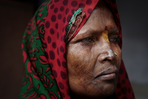 Agra, India. November 13, 2016.Portrait of Geeta. Scared face following the attack by her husband in 1992.