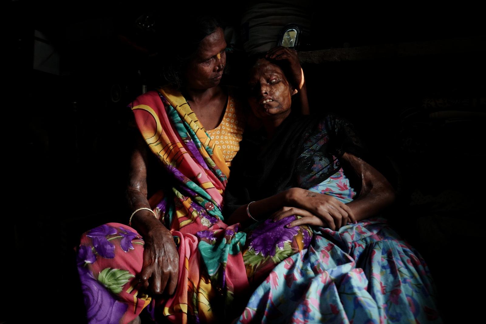 Agra,India, 04 November 2015. Geeta caressing her blind daughter Neetu, both victims of husband's acid attack.