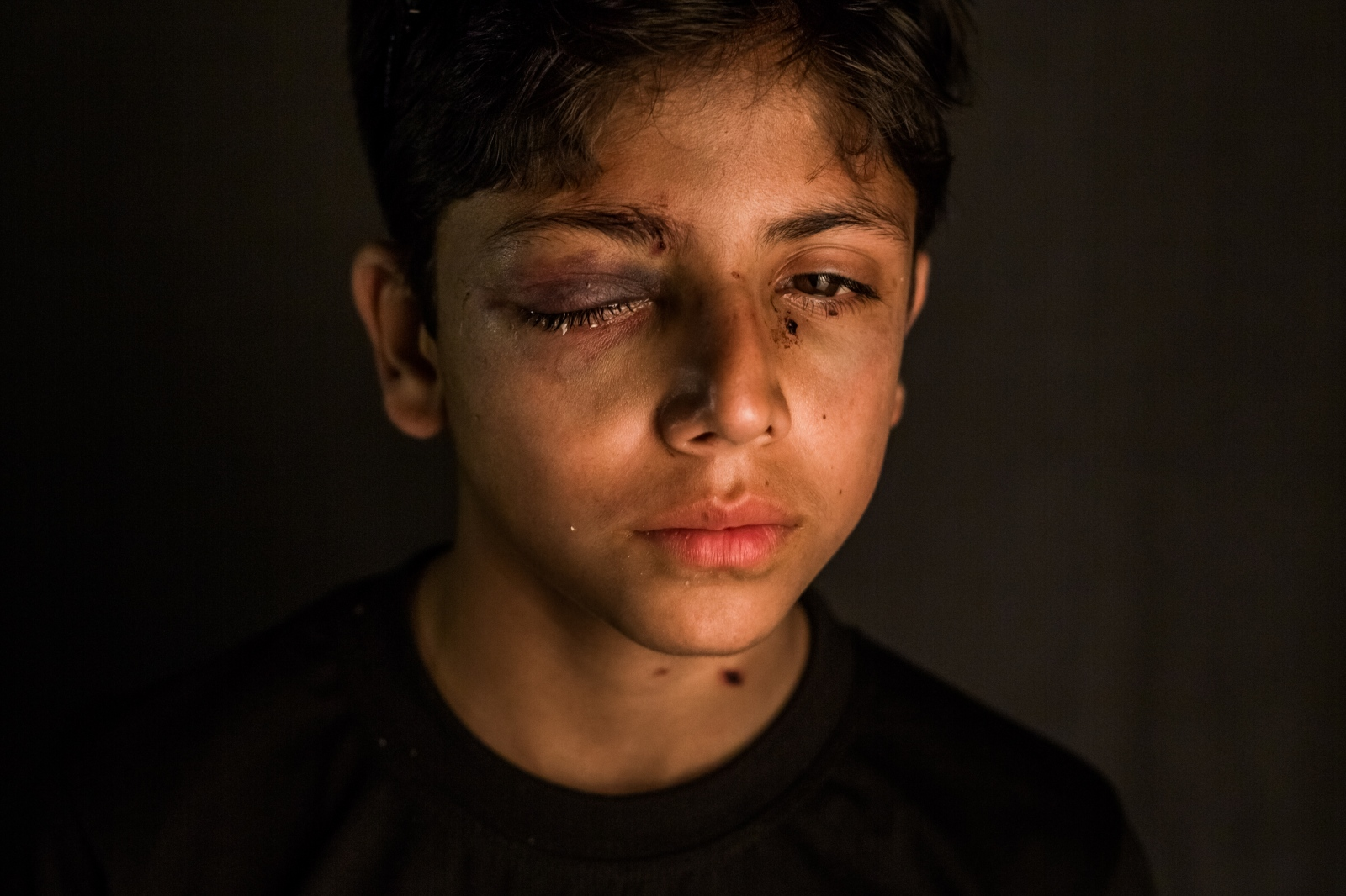 "Kashmiri child Mushtaq Ahmed, 11, poses for a portrait inside the Shri Maharaja Hari Singh (SMHS) hospital in Srinagar on October 4, 2016. Mushtaq, who was accompanied by his father, was injured on September 30 when Indian Central Reserve Police Force (CRPF) personnel fired pellets into a park where he was playing cricket with friends, in the Khanyar area of downtown Srinagar where he lives. He had undergone surgery and was due to be further operated on to remove pellets from his right eye. His father explained that no protests was taking place in the area at the time his son was shot, and says the CFPR personnel patrolling the area to ensure calm offered ""no protection"" to the people living there."