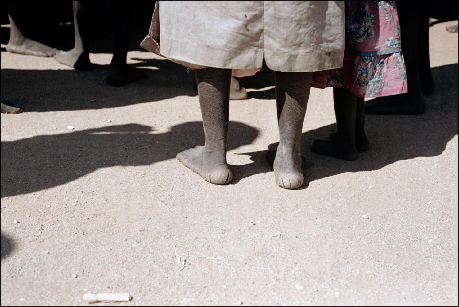 Feet, Cuando, Angola, July 2000