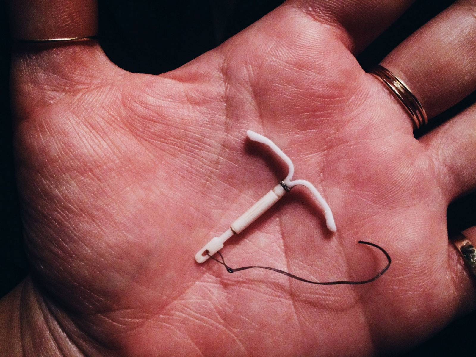 Britain offers 22 types of IUDs in different shapes and sizes to accomodate variations in womens' anatomy, Canada offers 9, and the US only 5. Under the ACA, women have access to birth control and other preventative reproductive health services with no copay. Without this policy, IUDs could cost women up to $1000 out of pocket.