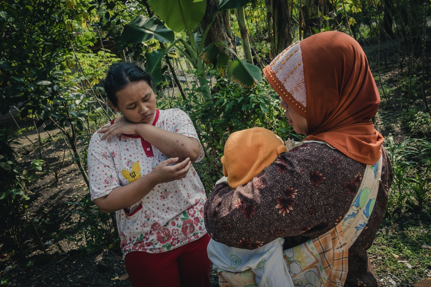 Indonesia, 2016. Nina Duwi Koriah talks with a neighbour outside her family home in the village of Winong near the town of Ngawi, East Java. Nina lives here with her husband, her two children, her father and her two brothers. Now back in Indonesia after her accident in Singapore, where she was employed as a domestic worker, she is staying with her family until she is well enough to work. She intends to stay near home, and look for work in the town of Ngawi, possibly as a sales assistant.
