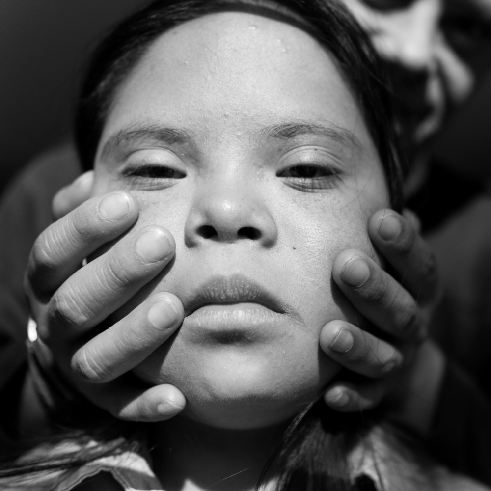 Art and Documentary Photography - Loading 01_Living_with_Down_Syndrome_AM.jpg