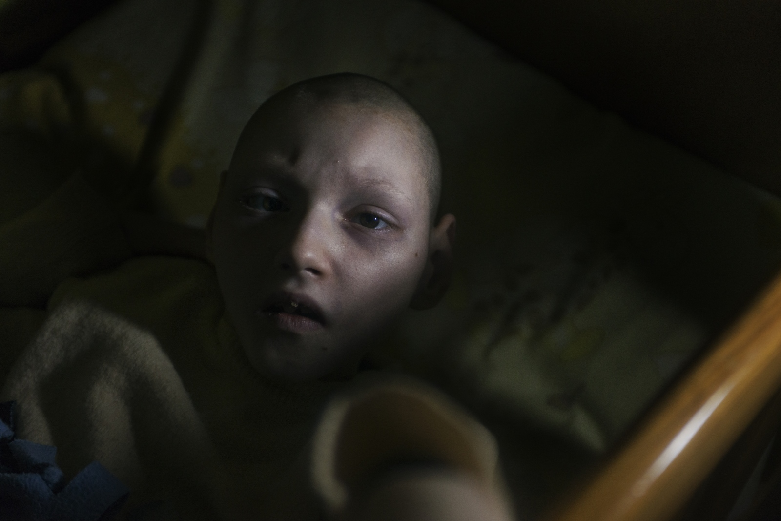 14 year old Dasha is nonverbal and often sobs loudly. One nanny reported that her condition is due to the fact that her mother was a whore. Some nannies shut the door to block out her cries which disturb the TV. The director has fired several staff members. However, citing Ukrainian labor laws, they sued and had to be reinstated.