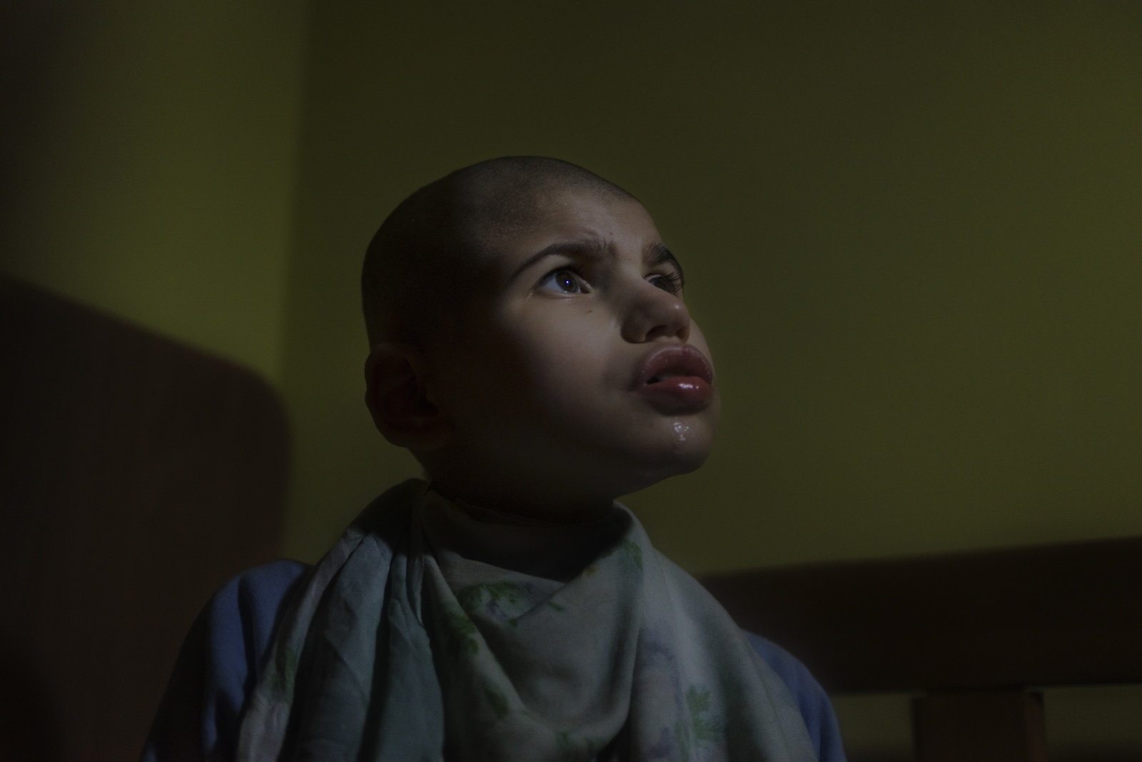 A child sits in bed wearing a homeade straightjacket to prevent self harm.