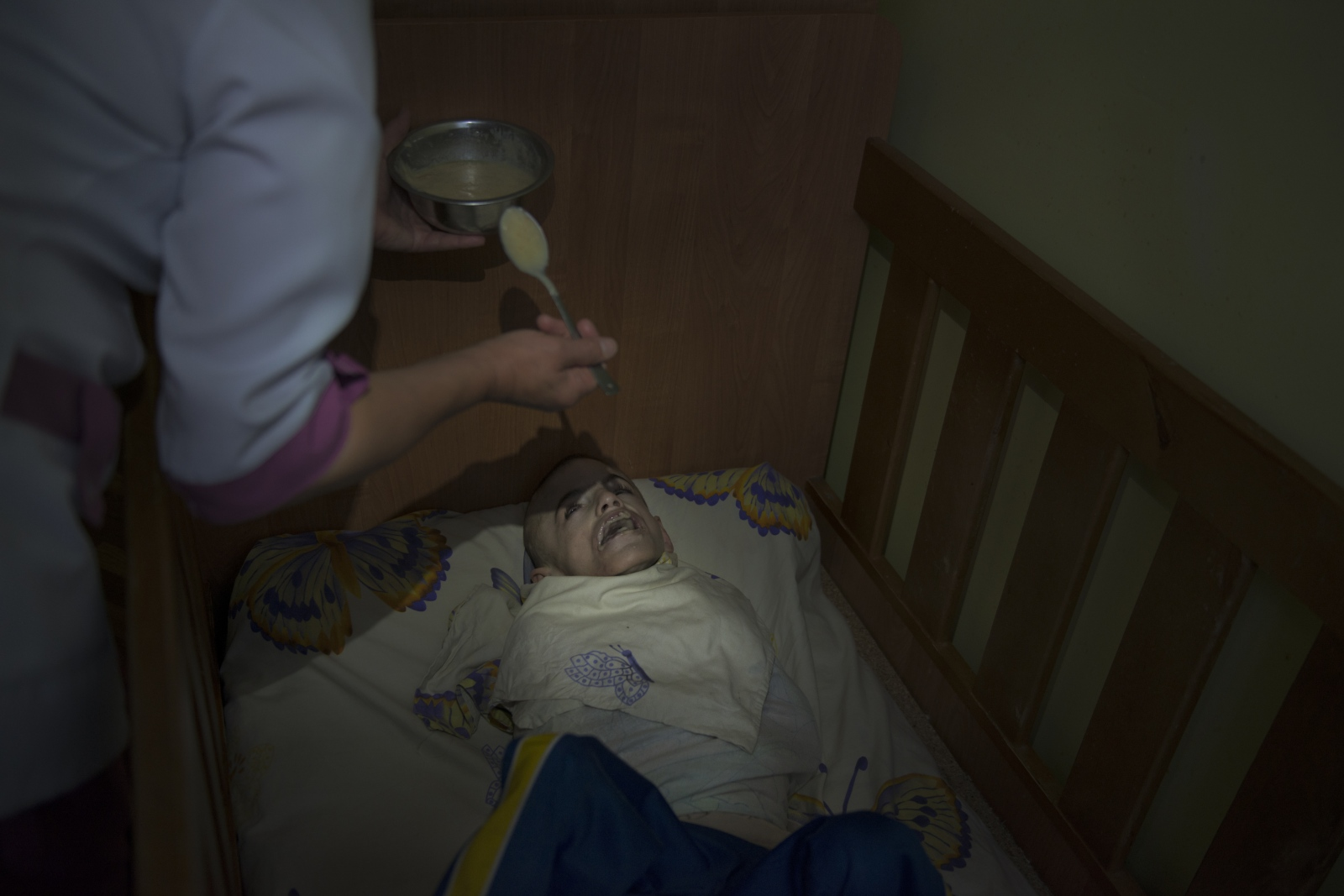 Nurses often get frustrated feeding children like Dima who must be restrained beacuse of constant thrashing around and self harming behavior. They often feed him hastily and as a result he is undernourished.