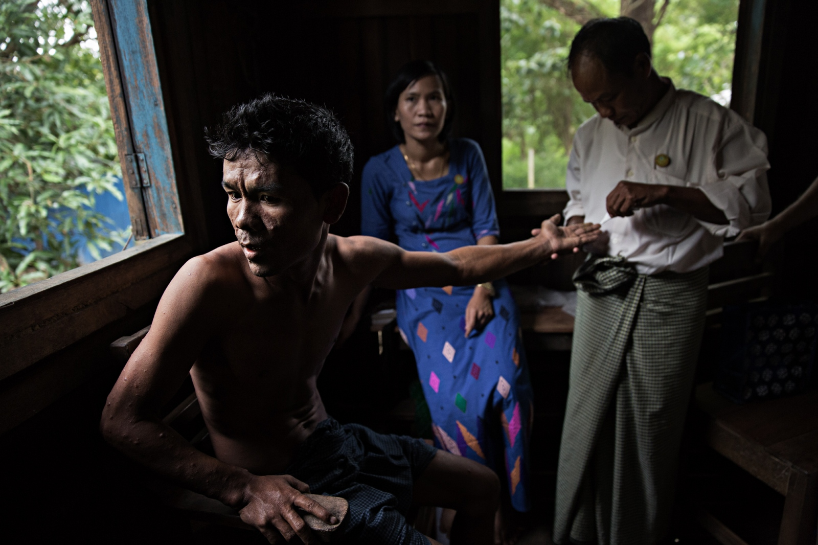In a village outside of Bagan, a man is diagnosed with leprosy. The disease is largely under control in Myanmar.