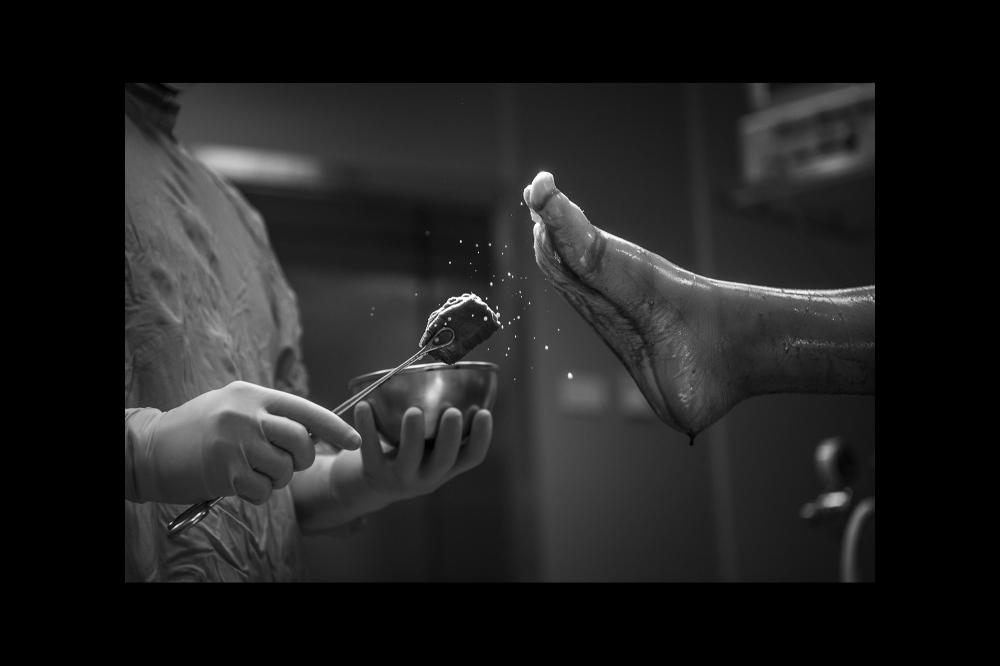 Gli arti da operare vengono preparati secondo le più eccellenti tecniche operatorie importate dal Rizzoli Bologna, tempio dell'ortopedia dal 1600.