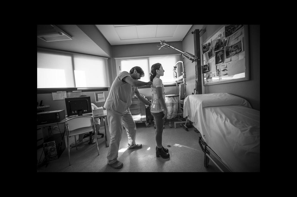 Il trattamento della scoliosi passa attraverso la correzione attraverso un busto