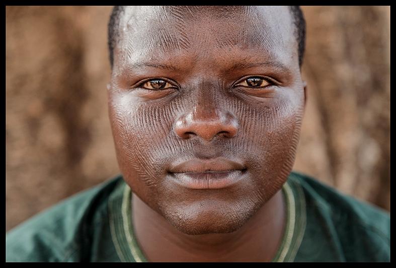 Ethnic facial abuse