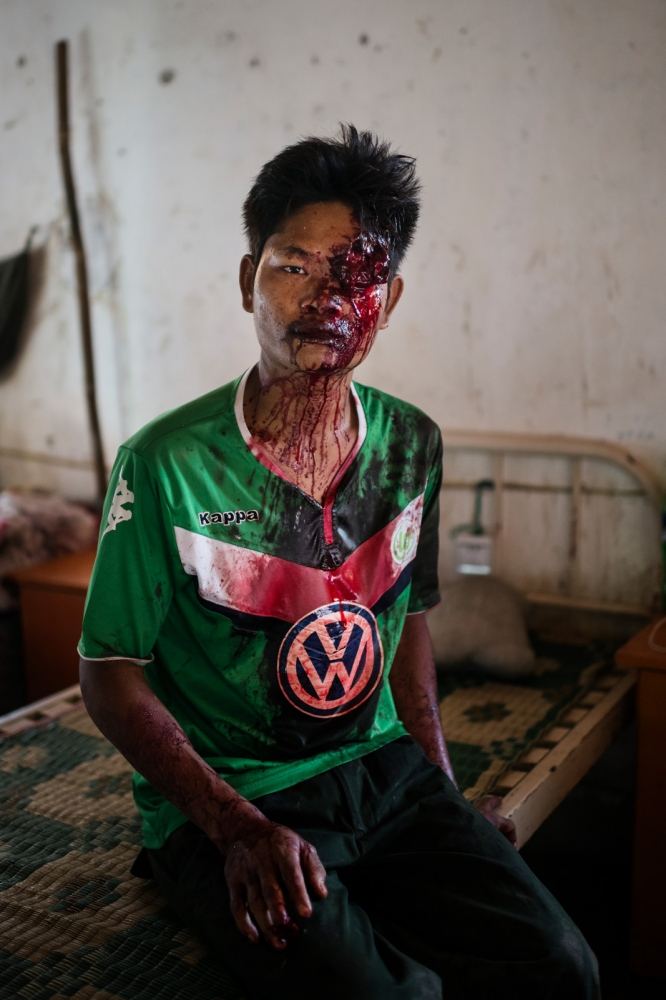 Lazum Htoi San, a K.I.A. rebell injured in a Burmese army shelling of Tsin Yu Bum, a mountain top with a frontline outpost, has just arrived at the army hospital in Laiza, Kachin State, Myanmar.