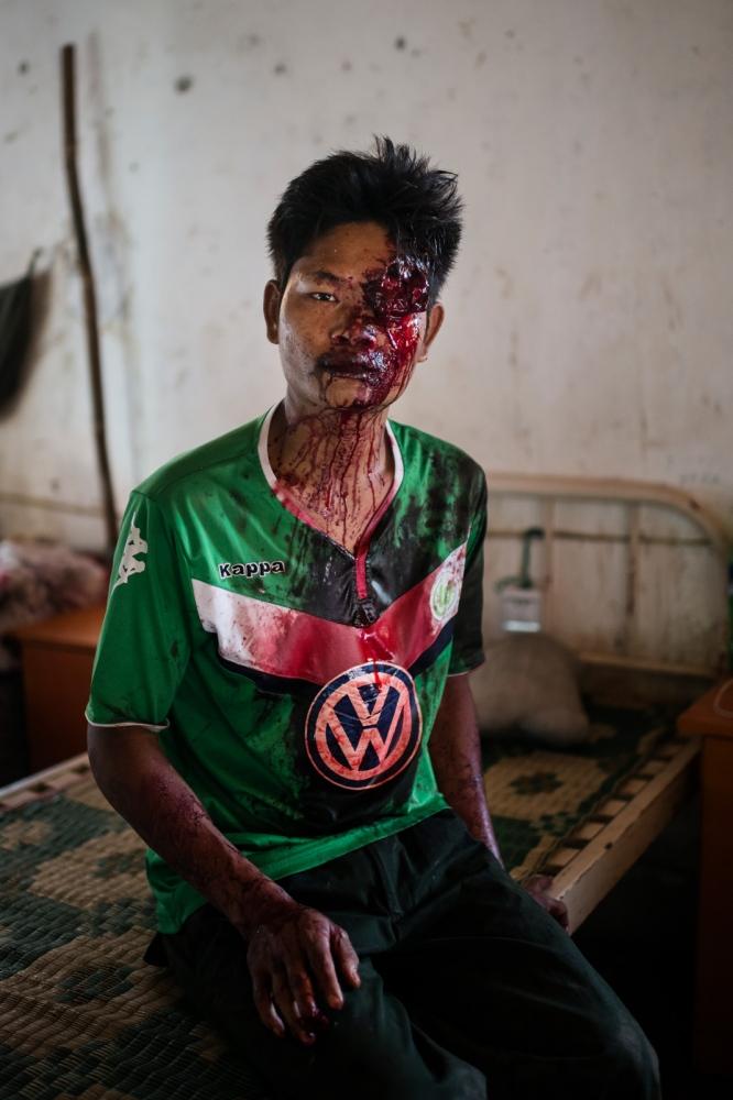 Art and Documentary Photography - Loading VS-Escalating-violence-Myanmar-04.JPG
