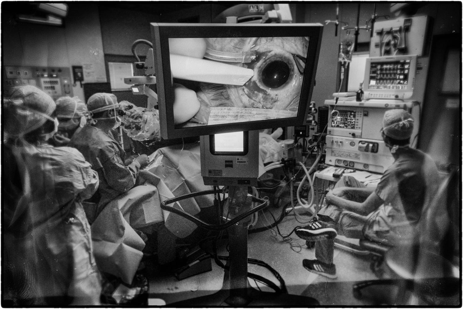 Art and Documentary Photography - Loading CVE-Glaucoma-0025.jpg