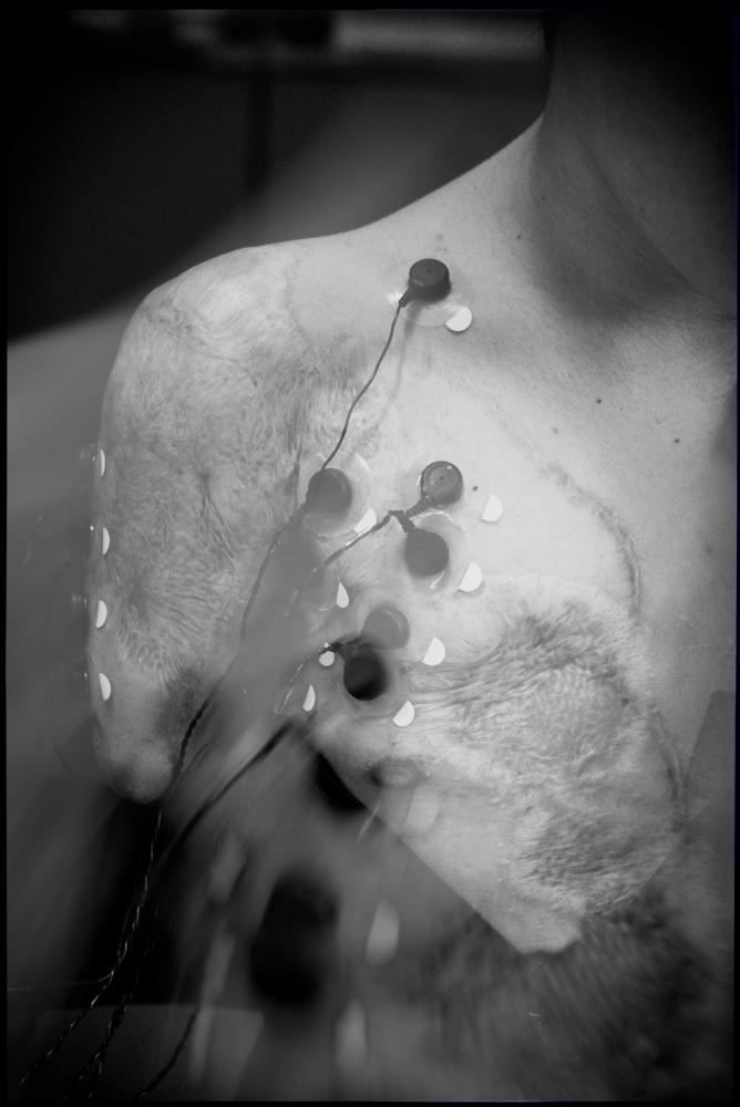 Art and Documentary Photography - Loading CVE-Glaucoma-0040.jpg