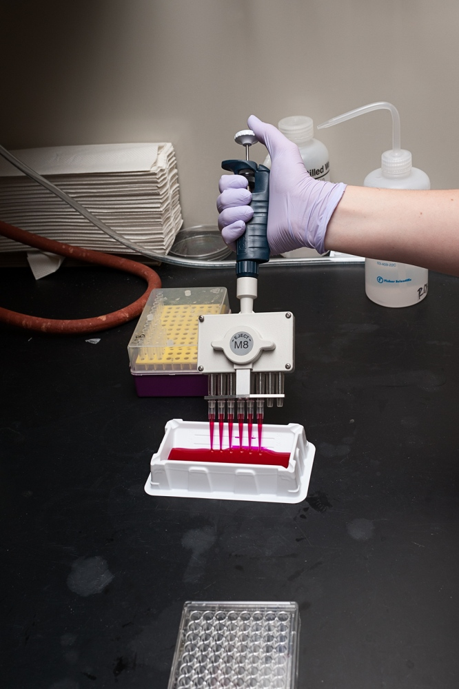 A cell culture lab experiment, invesigating the activation of tumor cell death with a novel cancer agent.