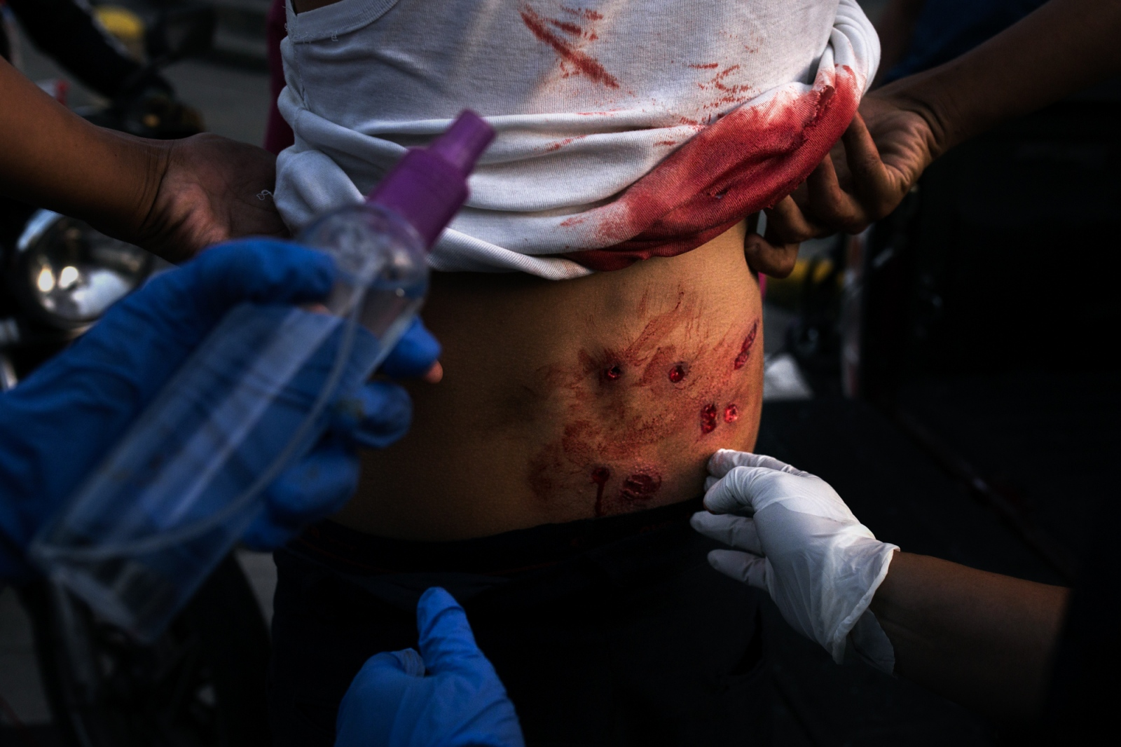 Art and Documentary Photography - Loading 015_VenezuelanUnrest_20170710_1419-Edit_Protestas.jpg